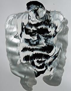 Morbus Crohn & Colitis ulcerosa Düsseldorf